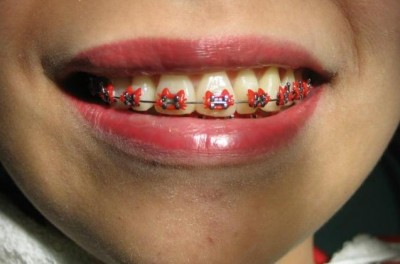 Yes. Hello Kitty braces.